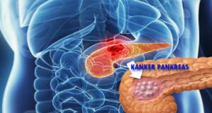 Kanker Pankreas