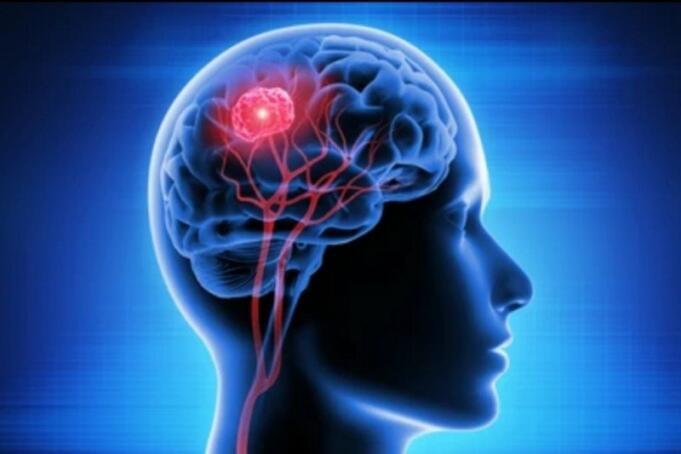 Ilistrasi Otak Manusia/Antara